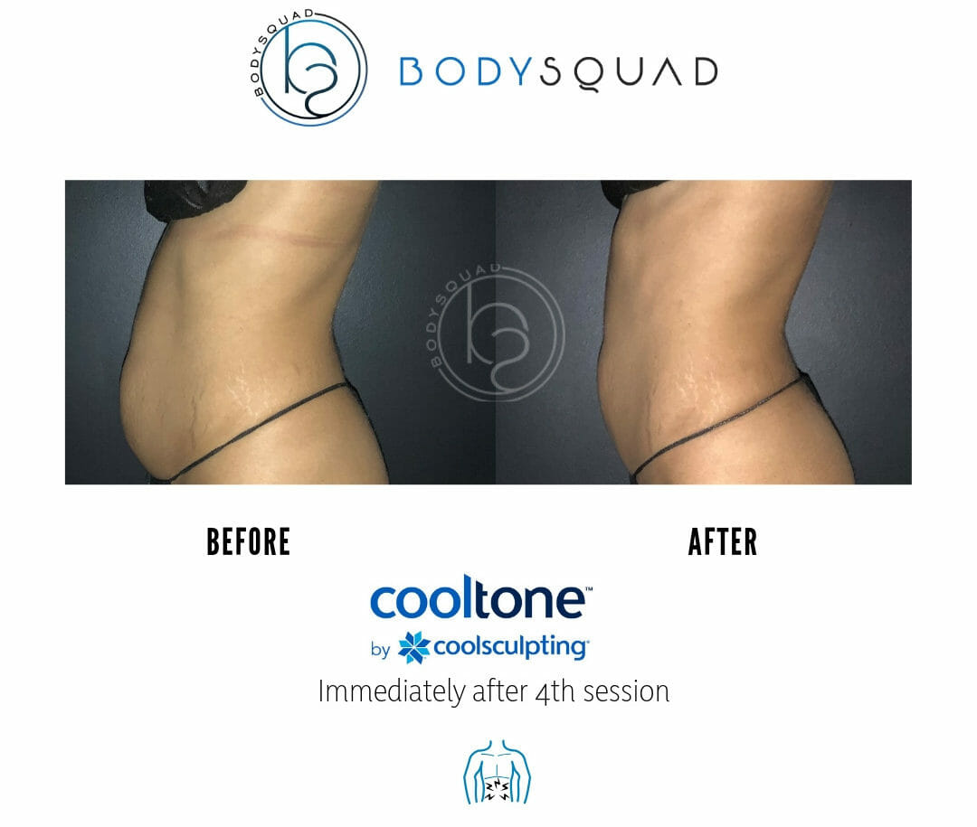 Bodysculpting by bodysquad