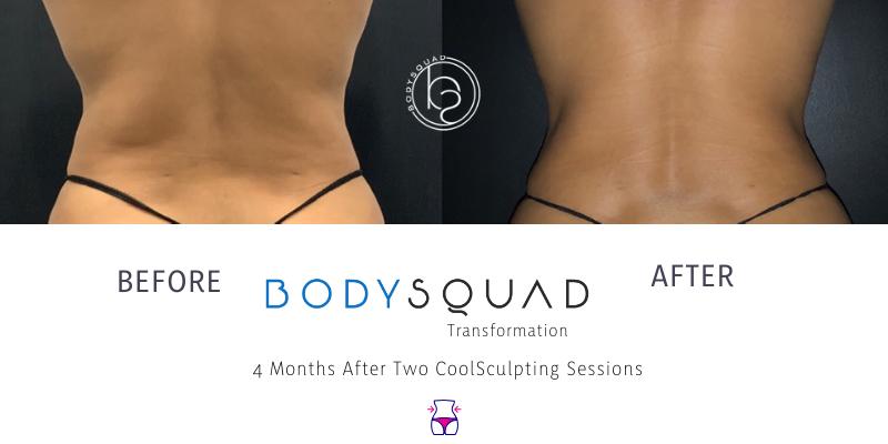 BodySquad Transformation Photos