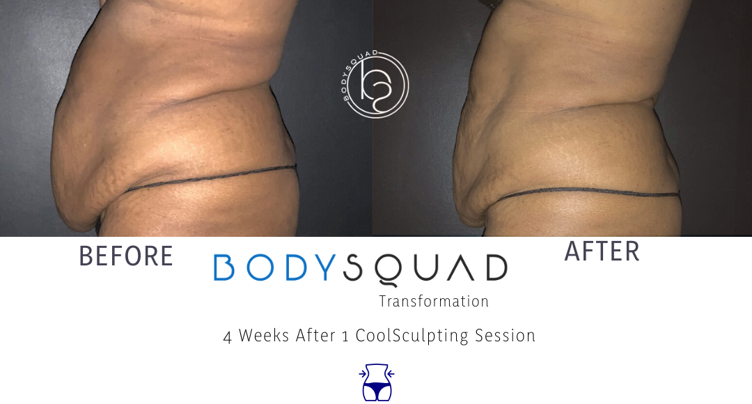 BodySquad transformation photo