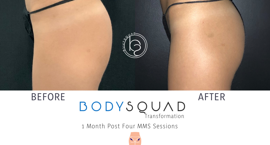 CoolTone Booty Transformations at BodySquad