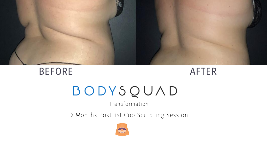 BodySculpting Results at BodySquad