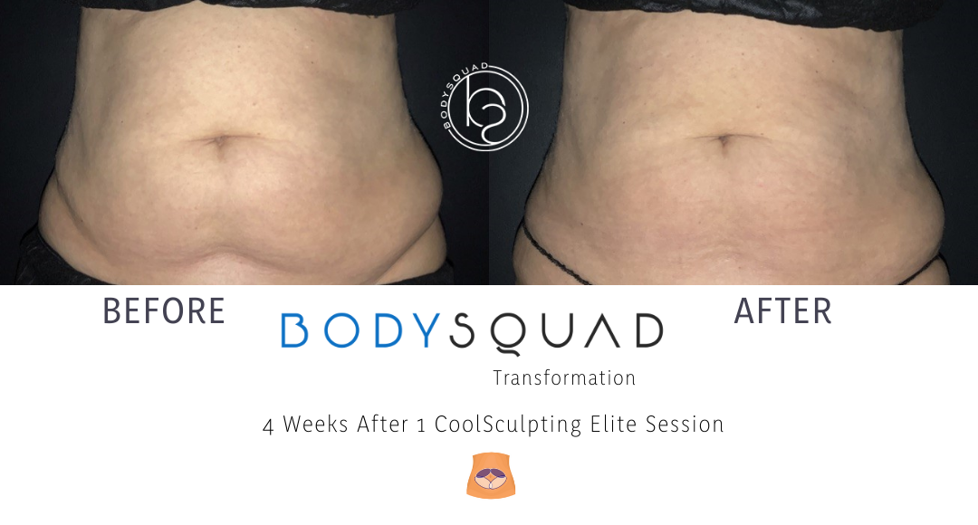 CoolSculpting and CoolTone at BodySquad treating the mommy pooch
